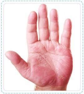 hand_allergy